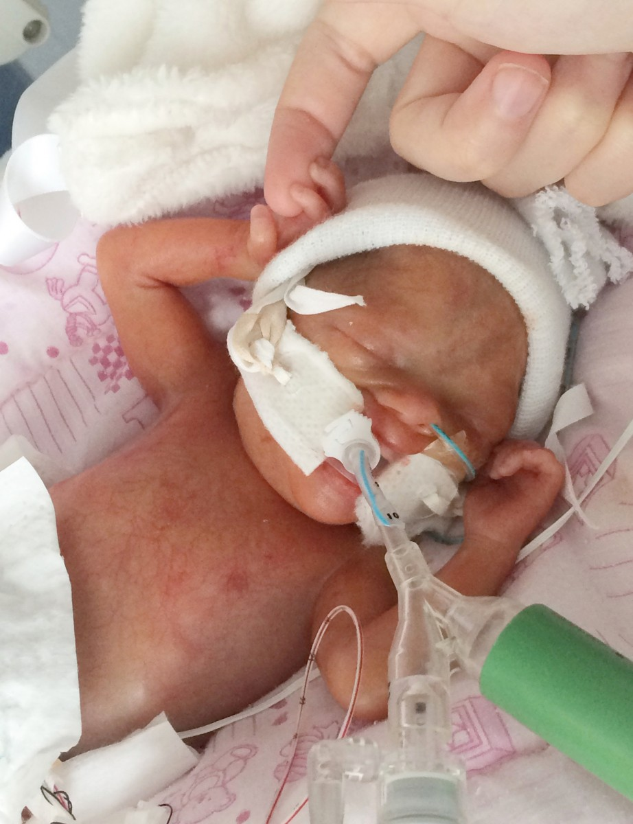 Baby born 15 weeks early is the same size as a PINT GLASS ...
