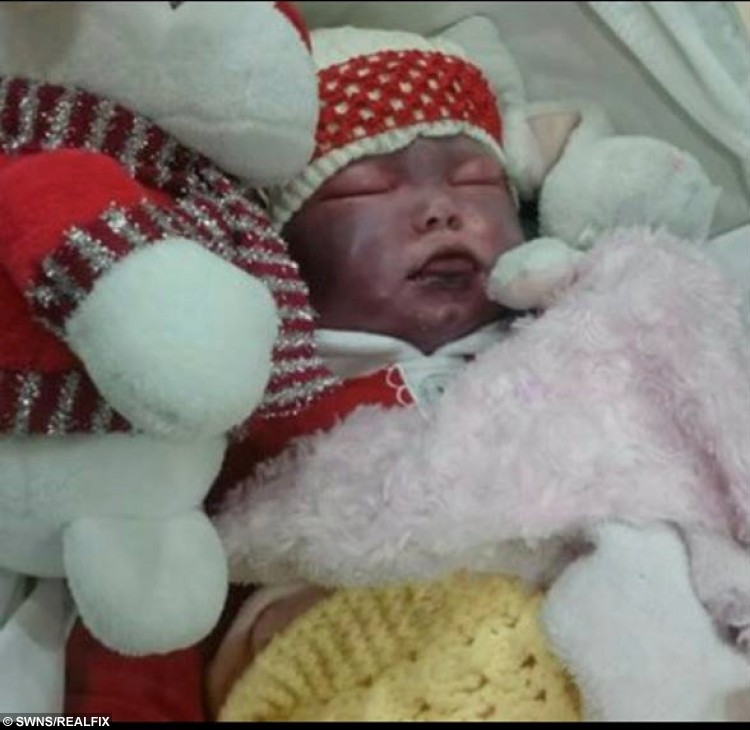 """Picture taken of Amelia Scudder, who died shortly afterwards. See Masons copy MNPHOTO: This shocking image shows a baby moments before she died from a rare form of meningitis that she could have been vaccinated against if she had been born just one month earlier. Amelia Scudder, who died at seven months, showed almost no symptoms of meningitis B and died the same day that mum Jade noticed she had rosy cheeks and a high temperature. Jade, 21, said: """"She was born in April last year so she missed out on the catch-up meningitis B vaccine by just one month."""