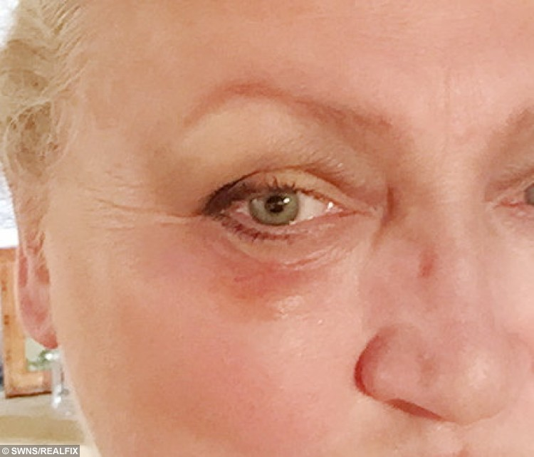 Beauty experty Jo-anne  has had treatment for a skin cancer