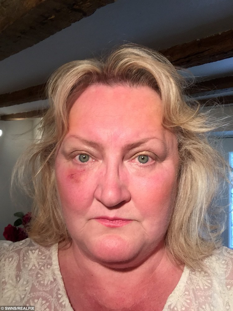 Beauty experty Jo-anne was stunned to discover she had skin cancer – because she had lavished sunblock on her pale skin