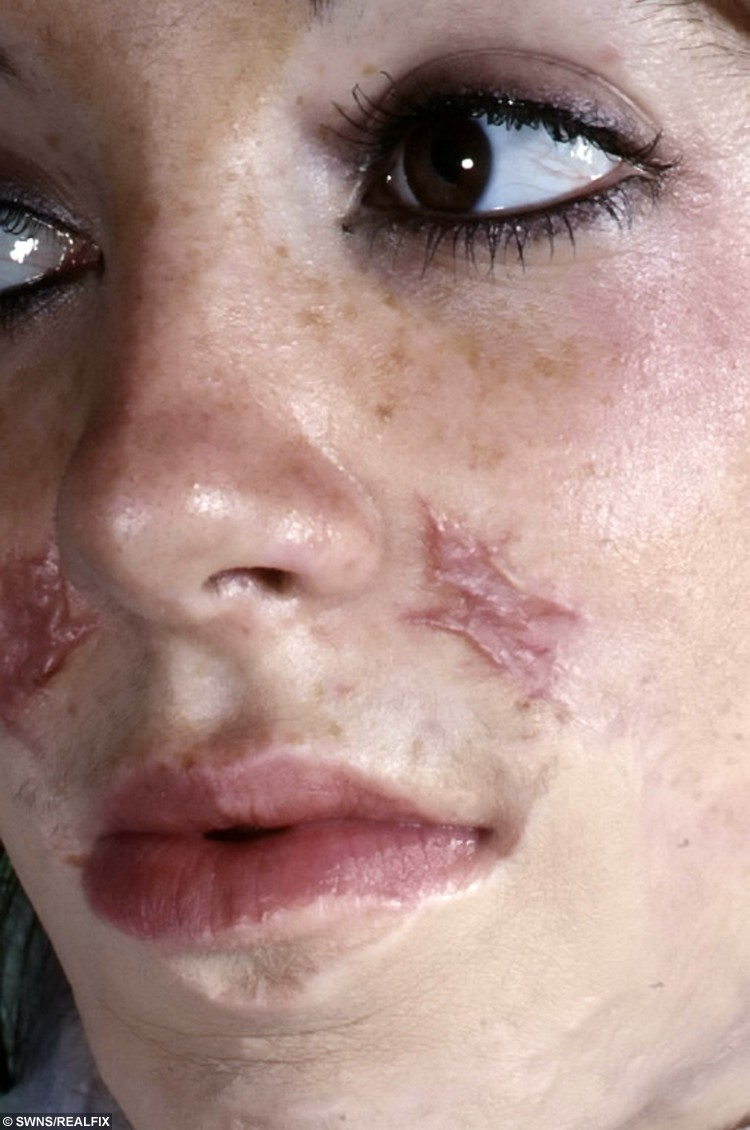 Jane Healy and some of her facial scars.