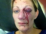 Mum outraged after her partner walks FREE from court after doing this to her