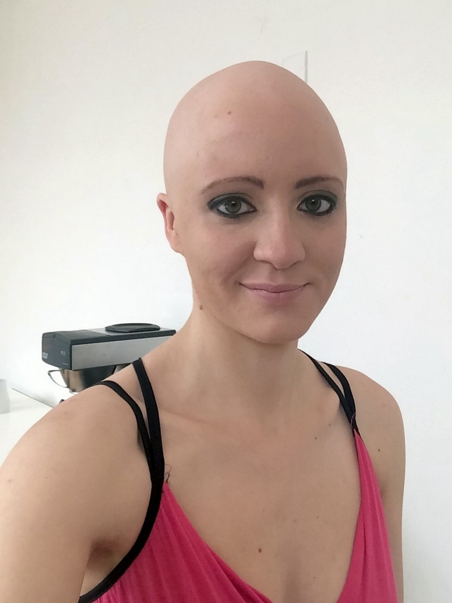 A Lady Who Lost Her Hair To Alopecia Has Joined A Team Of