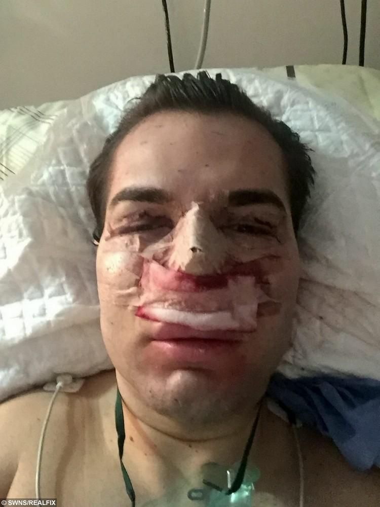 Rodrigo Alves during the operation.