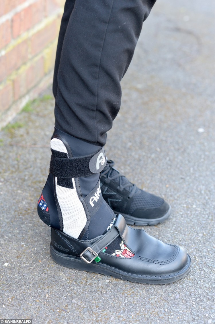 Sophie Bailey wearing her foot brace and how her shoe does not fit.