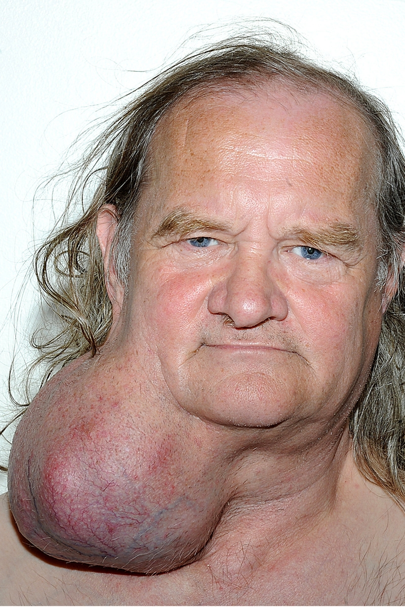 Warning: Graphic! Man has melon size tumour removed from his neck after 24 years