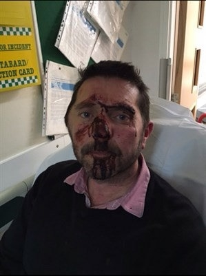 GRAPHIC. A man suffered horrific facial injuries after a savage street beating by a gang as he lay on the ground