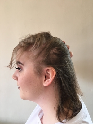 This woman started to go bald aged 13 so she did something AMAZING