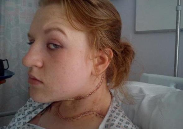 Student left looking like 'real life Frankenstein' after op to remove golf-ball sized lump on her neck