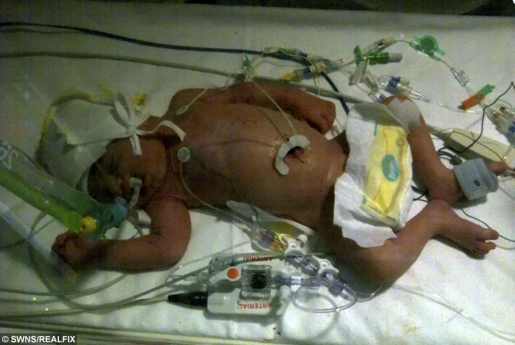 Leon Hart when he was born