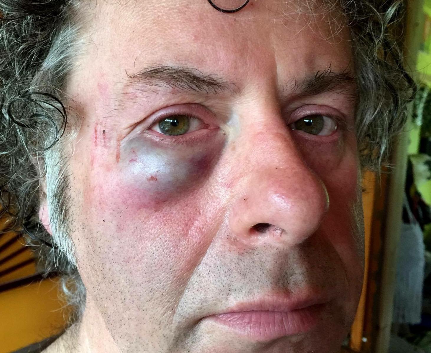 Cruel gang of twenty youths brutally ATTACK cyclist