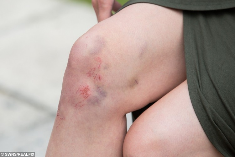 Natalie's bruises after the incident