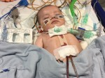 Critically ill baby girl had her heart stapled to her ribs in cutting edge surgery which saved her life