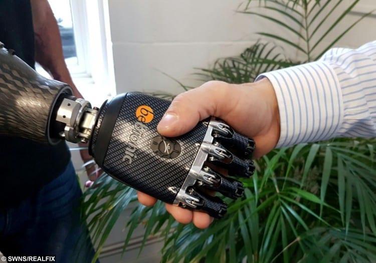 Mark's new bionic hand