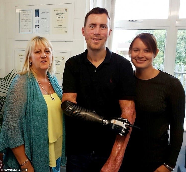 Mark Camamile with a new bionic hand and wife Wendy & mum Joy.