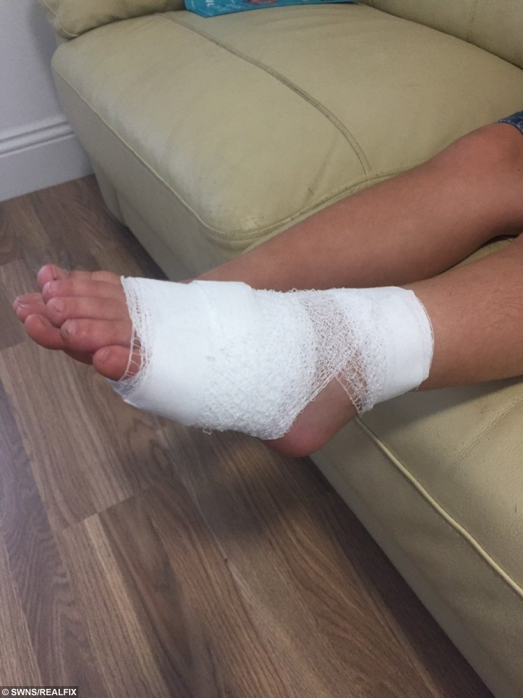 Ryan Bowman's burnt foot after he trod on a glowing hot disposable barbecue which had been hidden in the sand at a South Devon beach