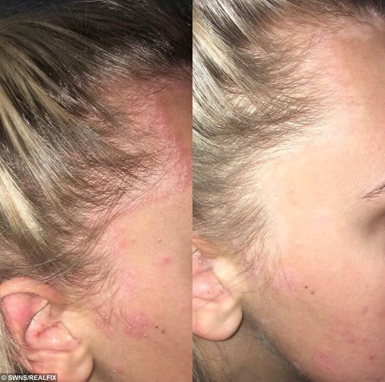 Before and after covering the scars with make up