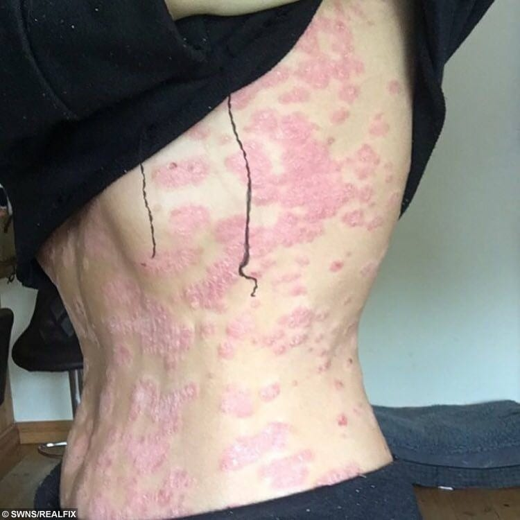Bryony , 21 who has psoriasis - a condition which causes an overproduction of skin cells, leading to red, flaky patches with silvery scales
