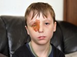 Ten-Year-Old Boy Could Be Blinded For Life After A Firework Exploded In His Face
