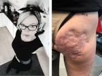 Crohn's Disease Sufferer Has Unsightly Bottom Scar Transformed With Incredible Tattoo