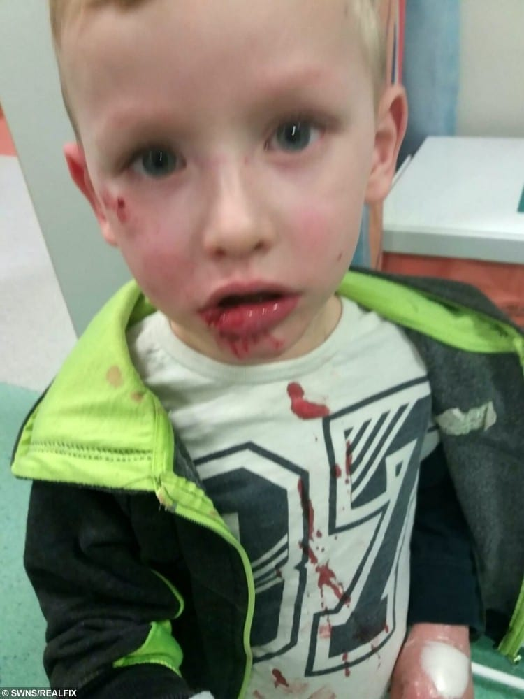 Four year old Jonathan Bloor njuries after the dog attack.
