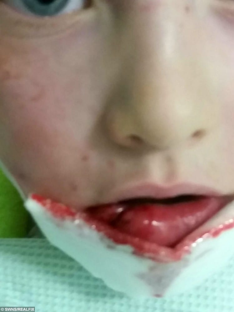 The little lad had reconstructive surgery but will be scarred for life after the attack