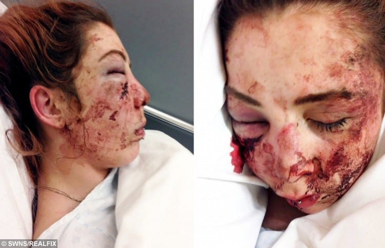 Emily O' Reilly receiving treatment at Walsall Manor Hospital after the attack.