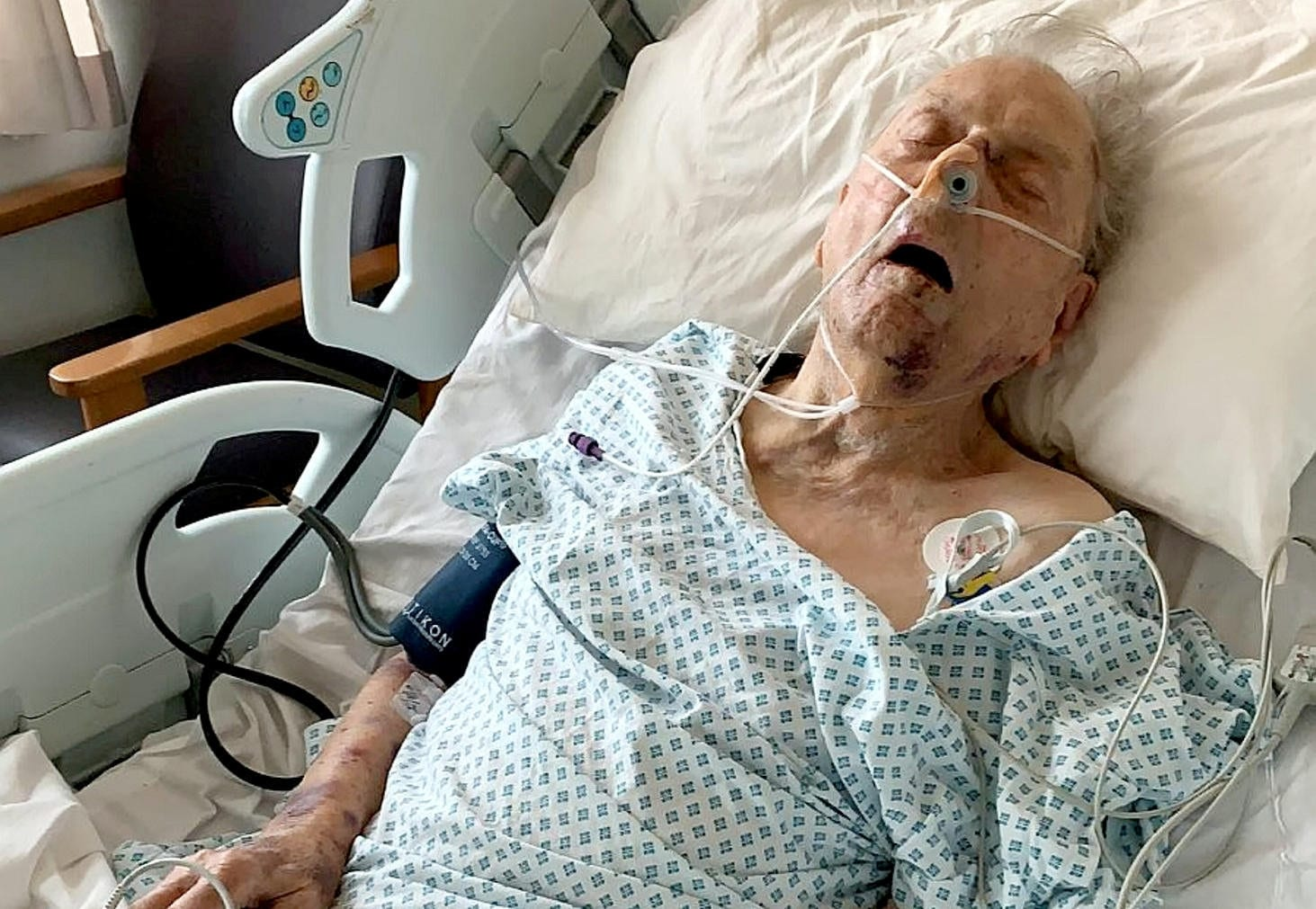 "98-Year-Old ""Fighting For His Life"" After Being Beaten By Burglars In ""Senseless"" Attack"