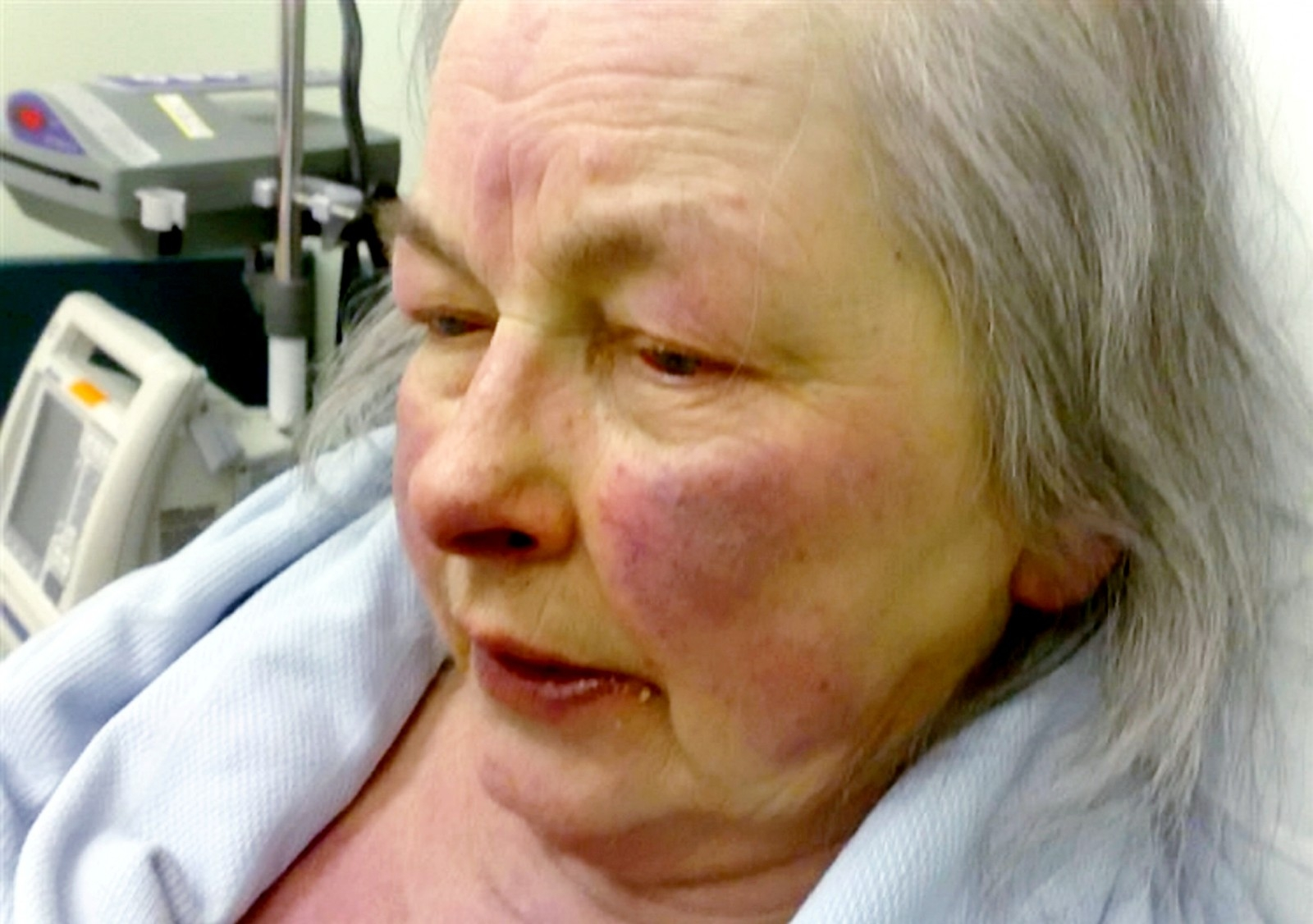 Pensioner Died After Getting Hypothermia - Because The Council Failed To Fix Her Central Heating