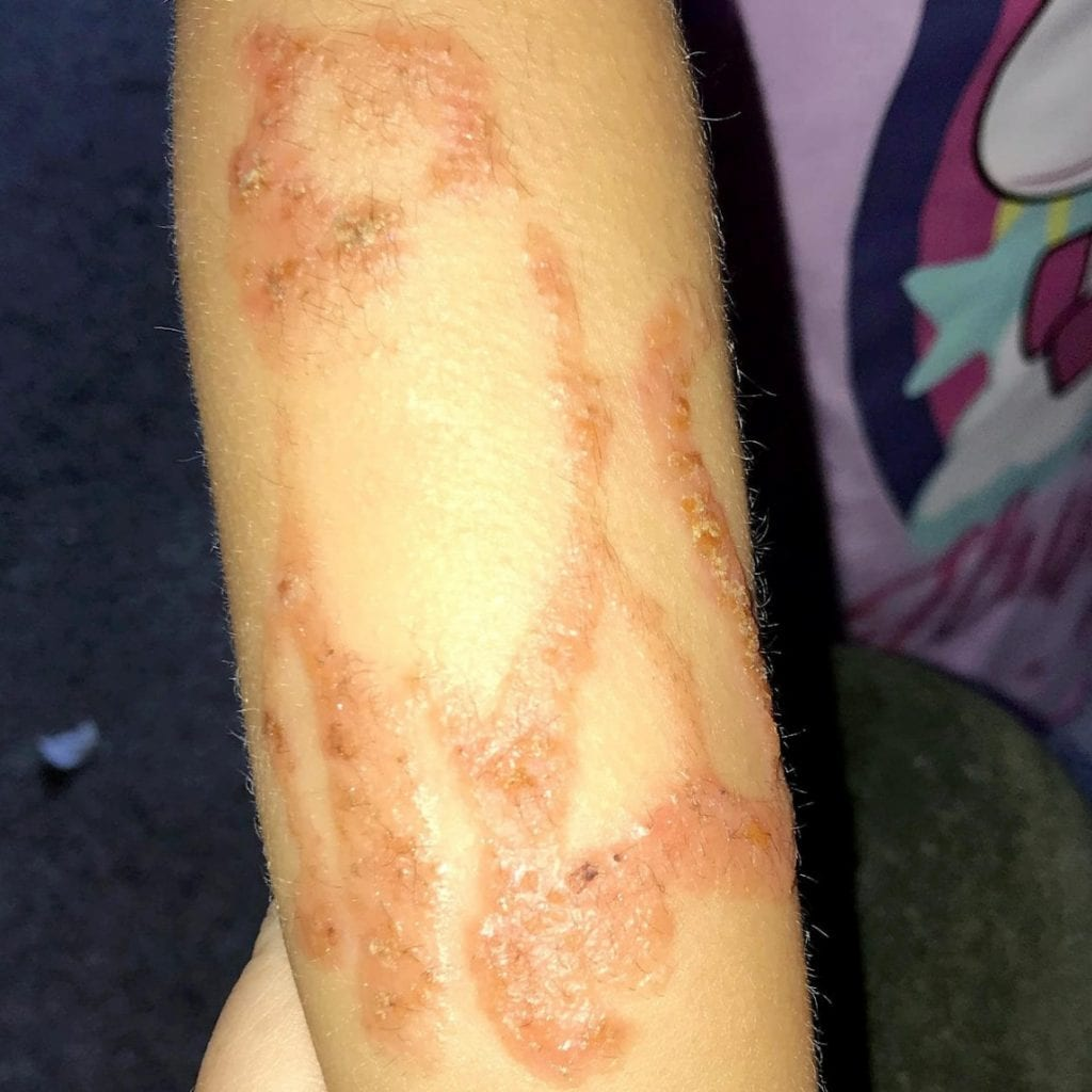 Three-Year-Old Girl Left With Horrific Chemical Burns And Permanent Scars - Thanks To Henna Tattoo