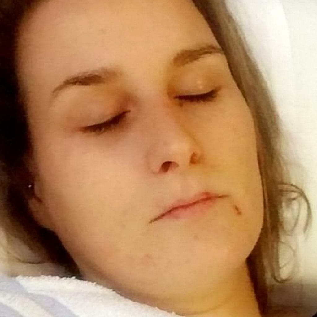 Mum Suffers Liver Damage Which Turned Skin YELLOW After Going On The Contraceptive Pill
