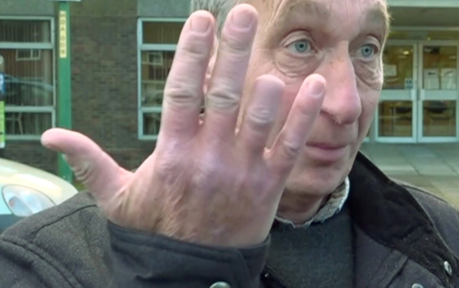 A postman had his finger bitten off by a dog as he pushed a letter through their box