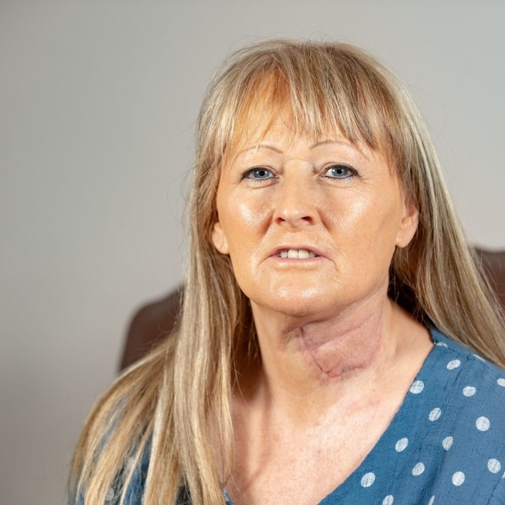 Mum Has New Tongue Made From Her ARM After Cancer Treatment