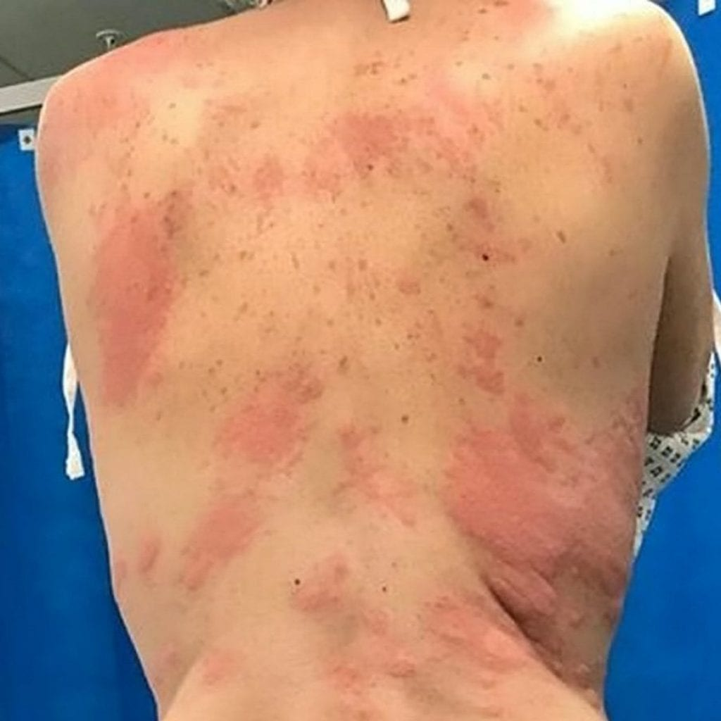 Mum Left With Painful Burn-Like Rashes All Over Her Body After A Serious Allergic Reaction To VAPING For The First Time