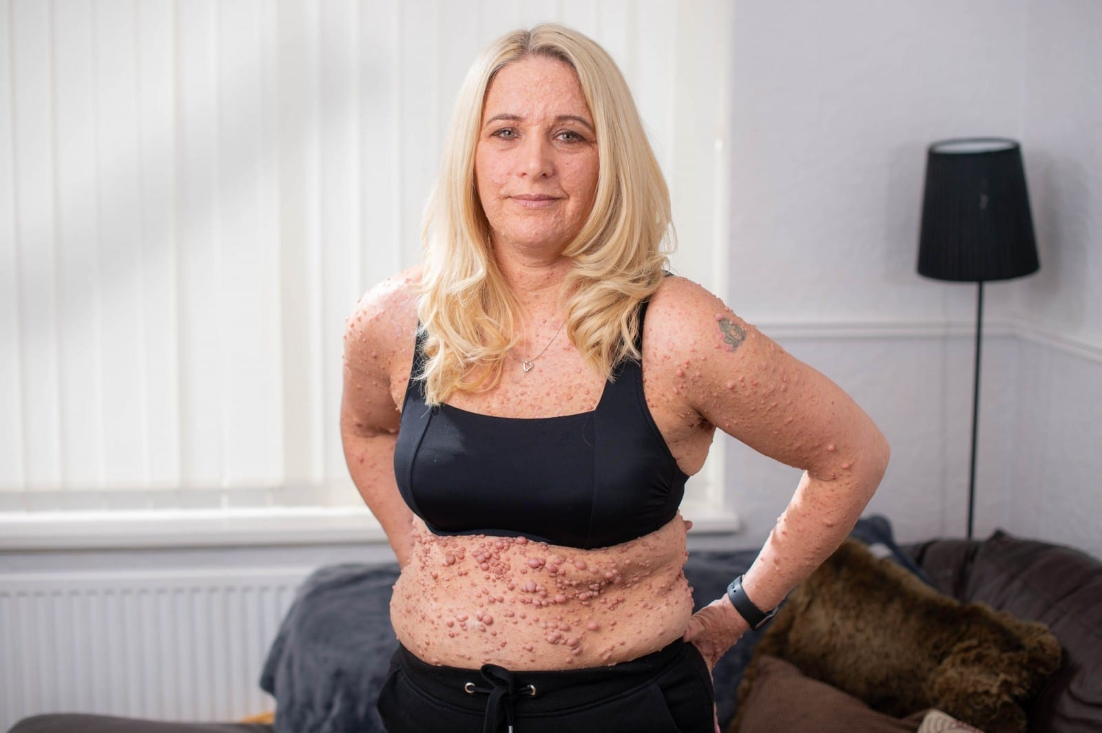 Mother Who Suffers From Rare Skin Condition Now Has Confidence To Wear Bikini In Public