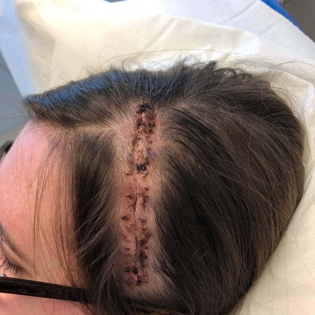 Teen Lives With Brain Tumour For Over A Year After Being Repeatedly Told She Was Suffering From Migraines