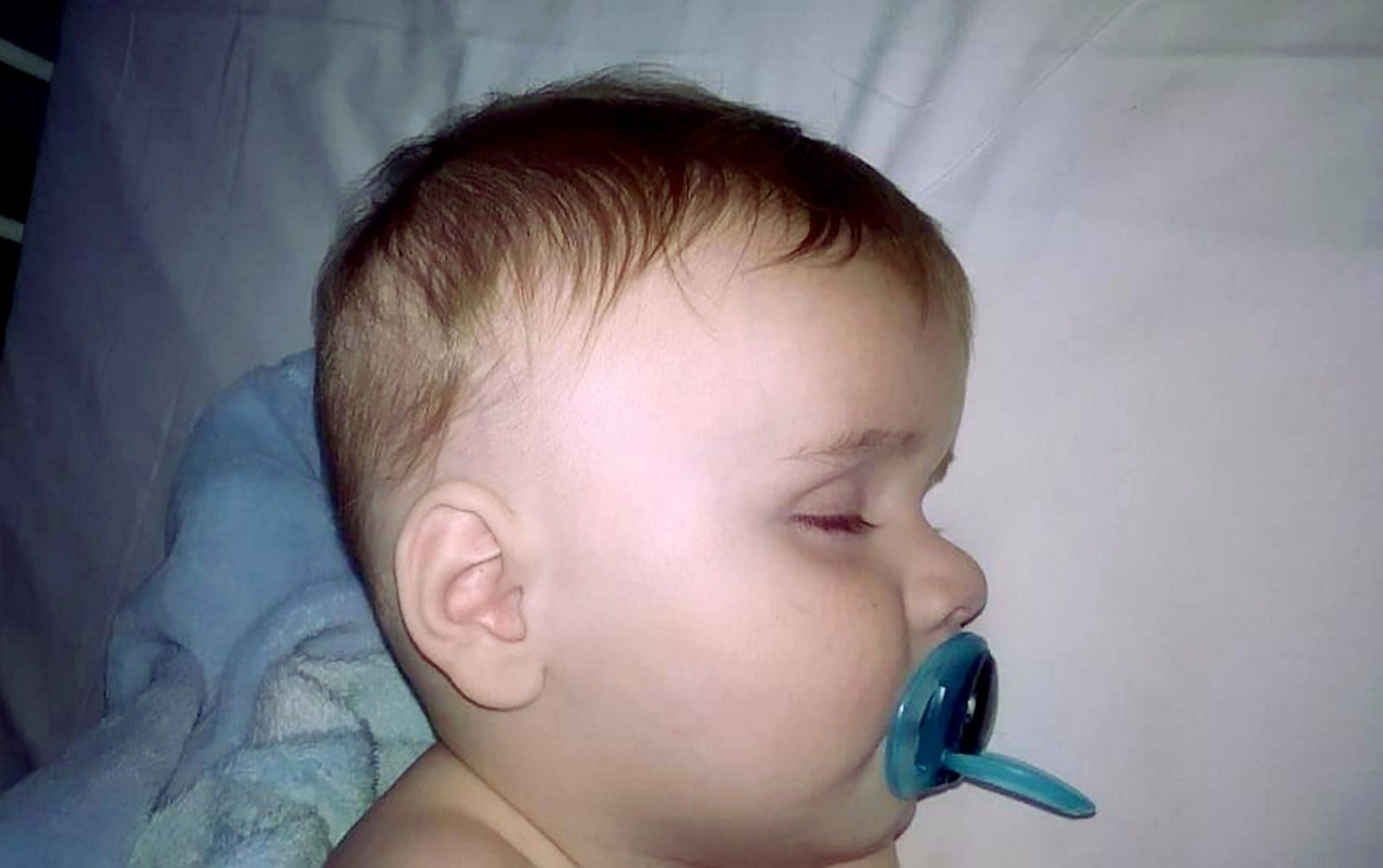 Baby Left Brain Damaged After Bungling Doctors Misdiagnose Meningitis And Dismiss His Symptoms As A Chest Infection