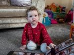 Toddler With Rare Condition Has Both Legs Amputated – After Being Born With 'Jelly Legs' And No Bones In Her Shins