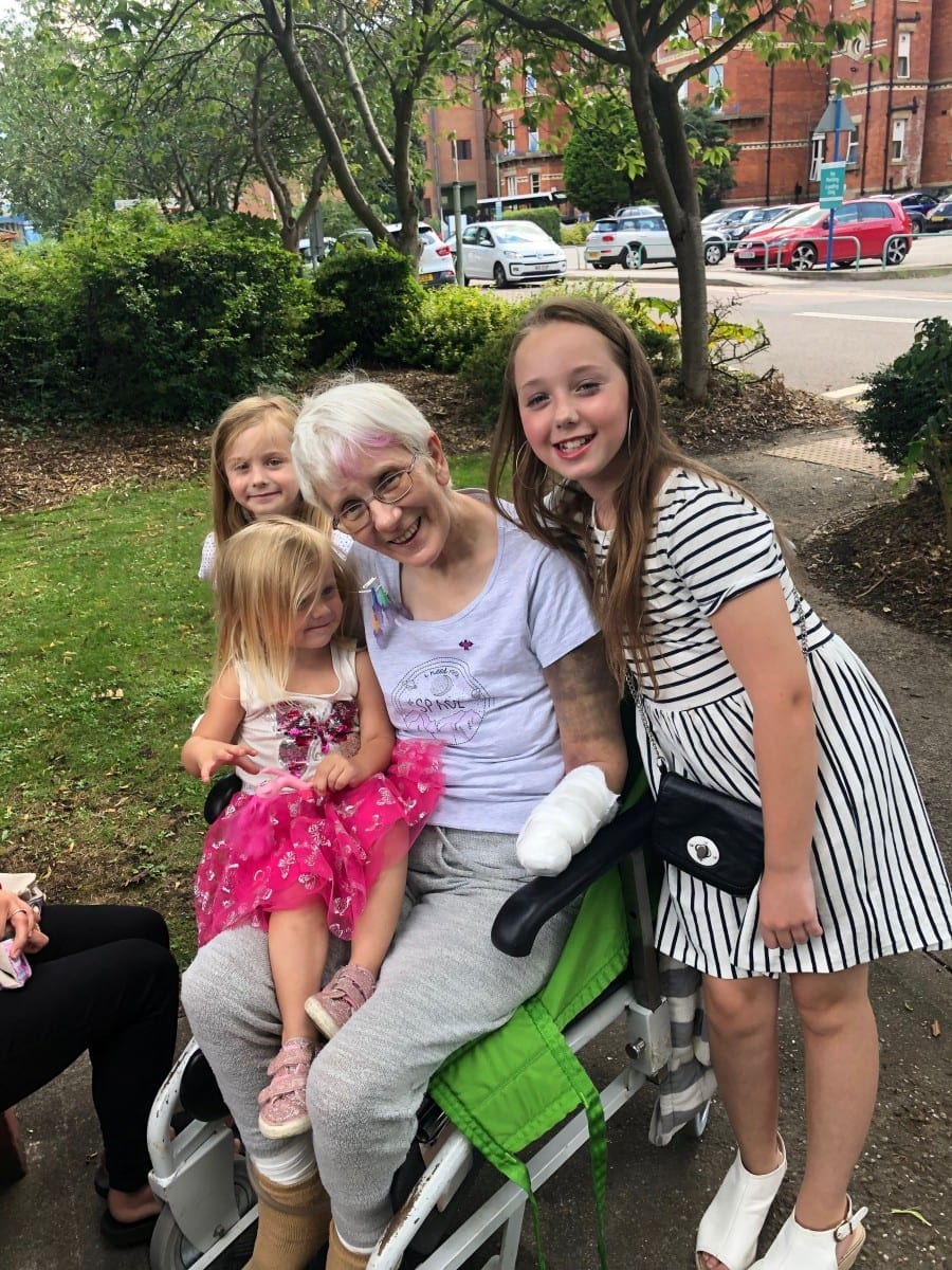 Gran Hospitalised With Kidney Stones Ended Up With Sepsis And Had All Her Limbs Amputated