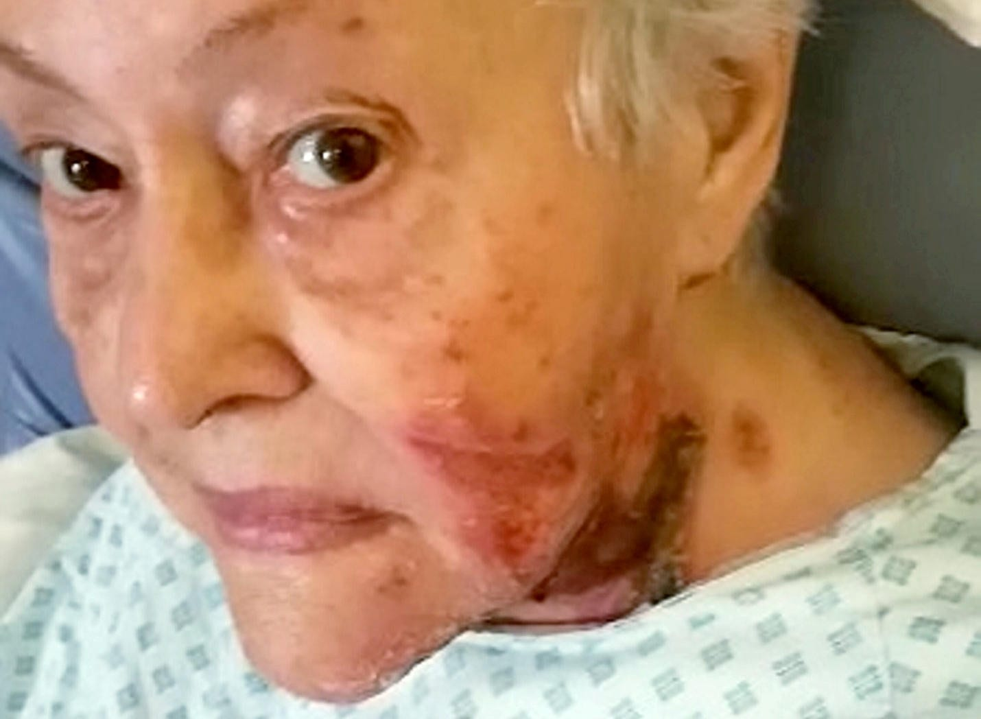 80-Year-Old Burned After Cigarette Tip Fell And Ignited Her Clothing - Amid Claims Negligent Carers Are To Blame