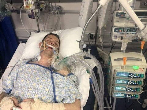 Groom Who Plummeted Through A Bannister On His Wedding Night Woke Up From A Coma Thinking He Was Still A Bachelor
