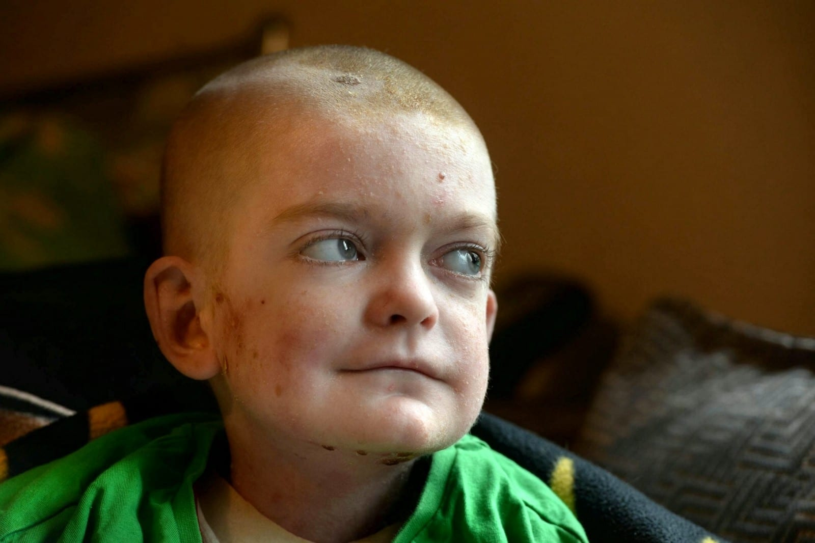 A Heartbroken Mum Is Appealing For Birthday Cards For Her Son Battling  Harrowing Skin Condition Which Has Left Him Feeling Like He's