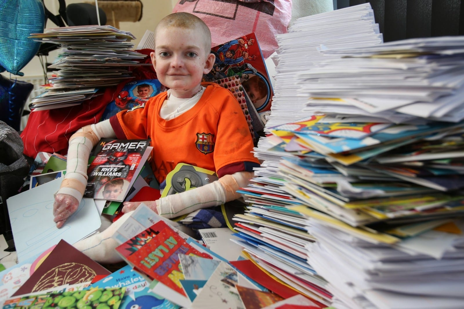 Schoolboy With Skin Condition Surrounded By 10,000 Birthday Messages From Across The World After Telling His Mother: 'I've Had Enough Of Life'