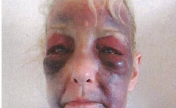 Brave Domestic Violence Survivor Shares Shocking Images Of Sickening Injuries To Urge Other Victims To Get Help