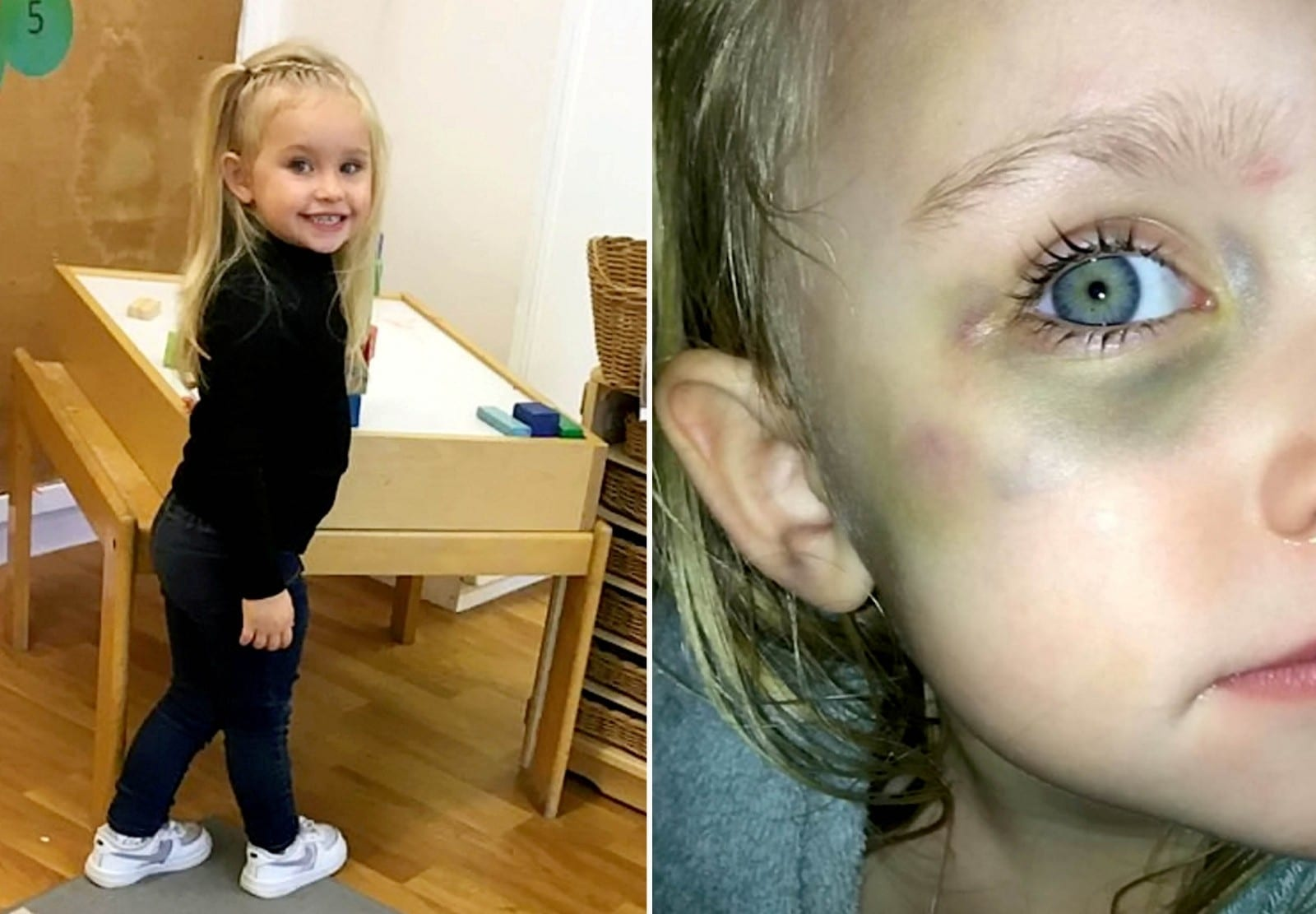 Fuming Mum Slams Nursery After Her Three-Year-Old Was Hospitalised When She Was Crushed By Bookcase