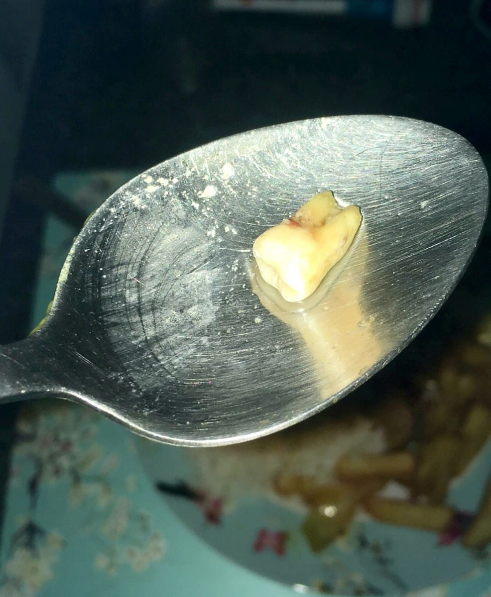 Disgusted Couple Put Off Takeaways For Life After Discovering A Human TOOTH In Their Curry