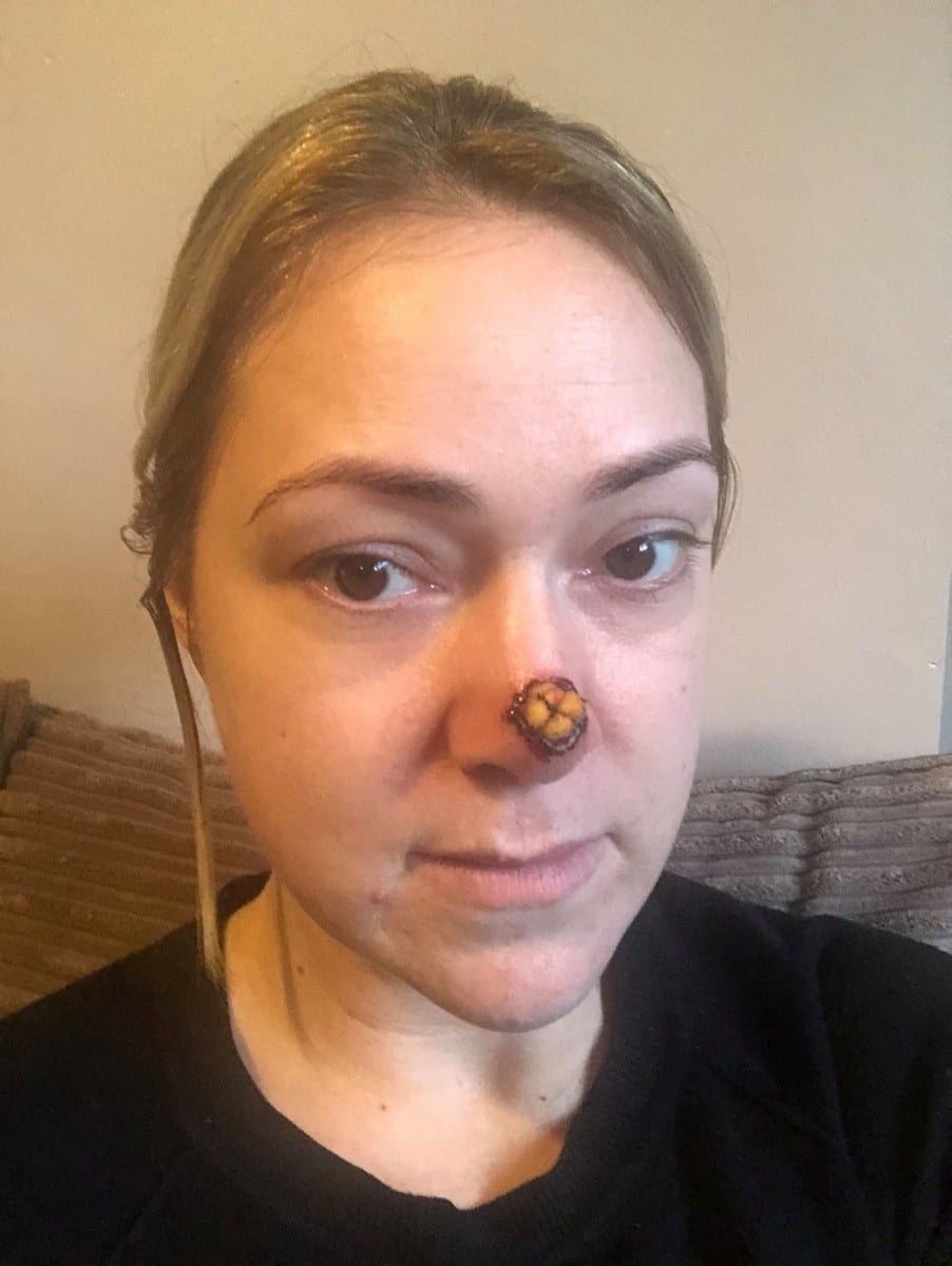 'It's Going To Eat Away At Your Nose' - Mum Left Horrified After A Spot On Her Nose Turned Out To Be Flesh-Eating SKIN CANCER