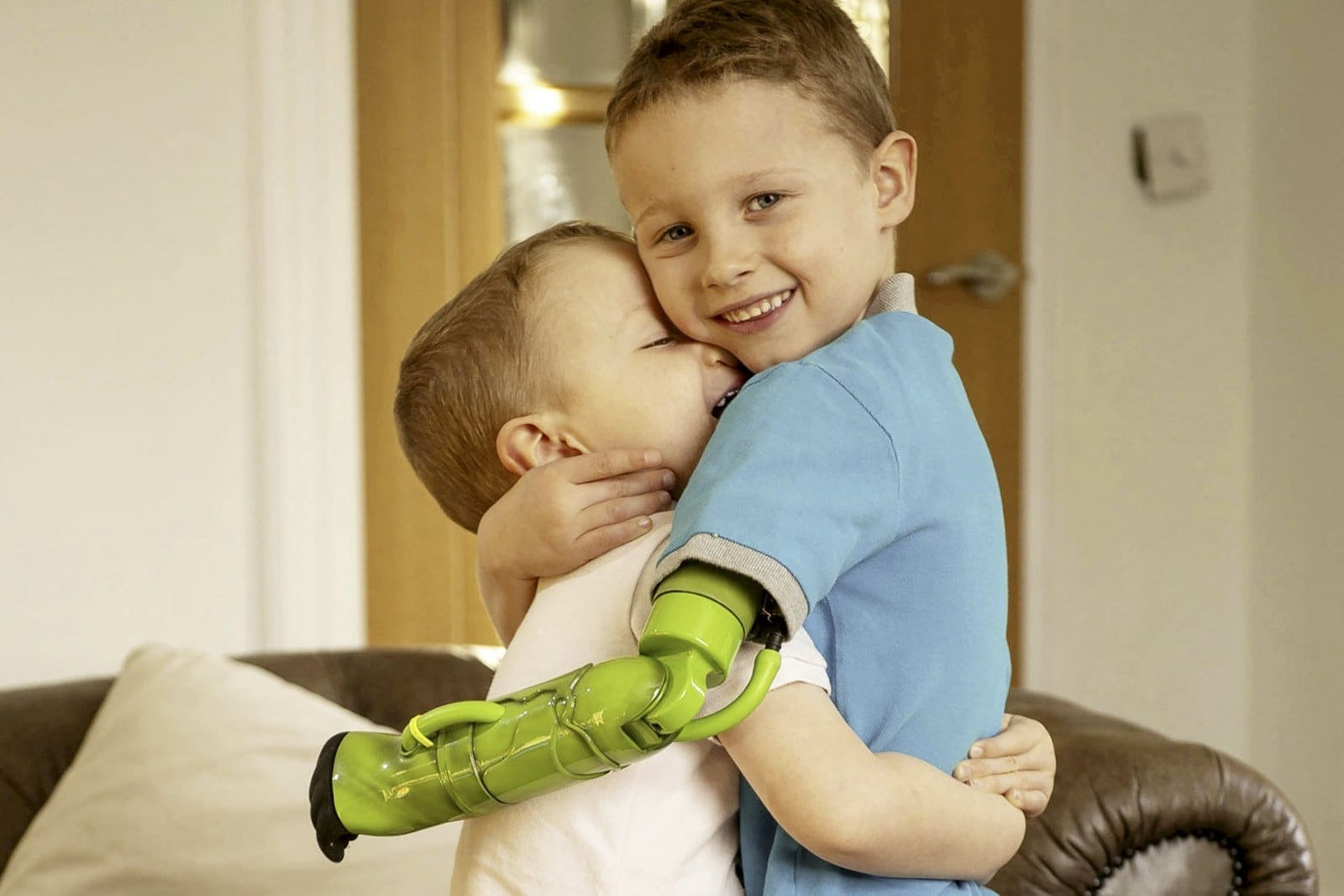 Five-Year-Old Can Finally Give His Little Brother A Hug After Being The First Child In The UK To Have A Functioning Prosthetic Arm Fixed ABOVE The Elbow