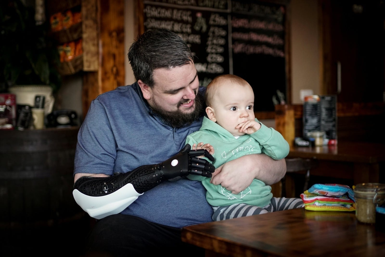 Dad Who Lost His Right Hand And Both Legs To Meningitis At Just Five Years Old Has Got A Bionic Hero Arm – To Help Him Look After His Baby Son Just In Time For Christmas