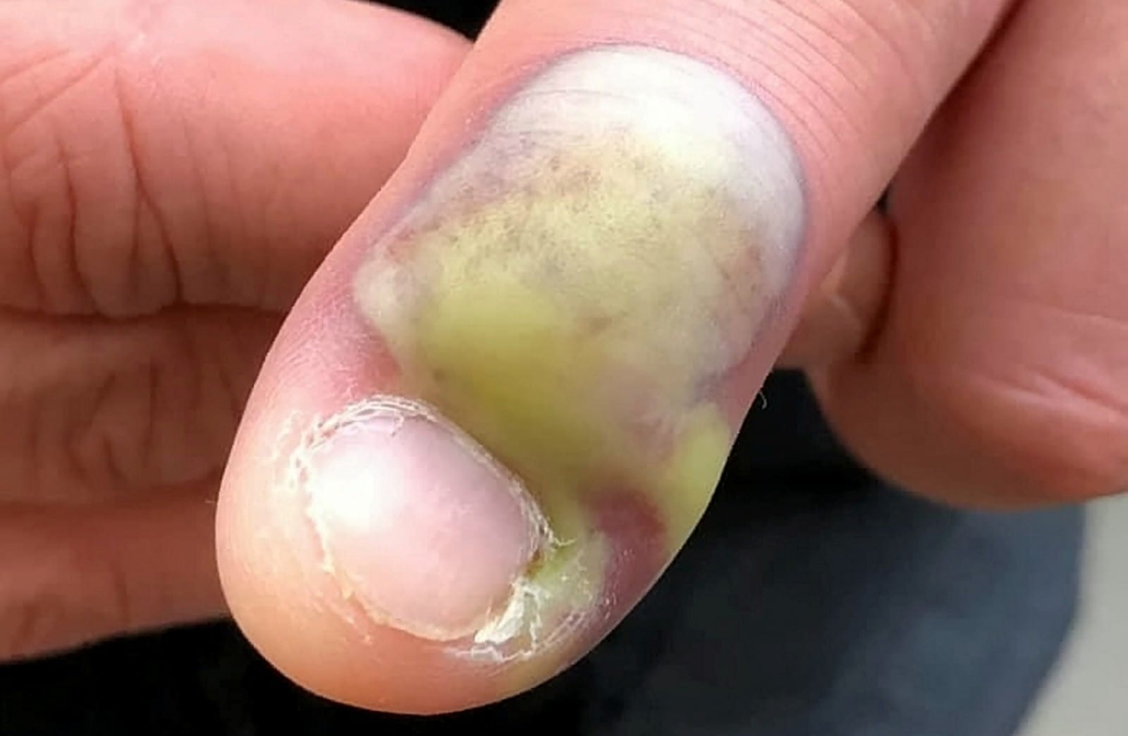 Man Is Speaking Out To Warn Others After His 'Harmless' Nail Biting Habit Left Him Fighting For His Life